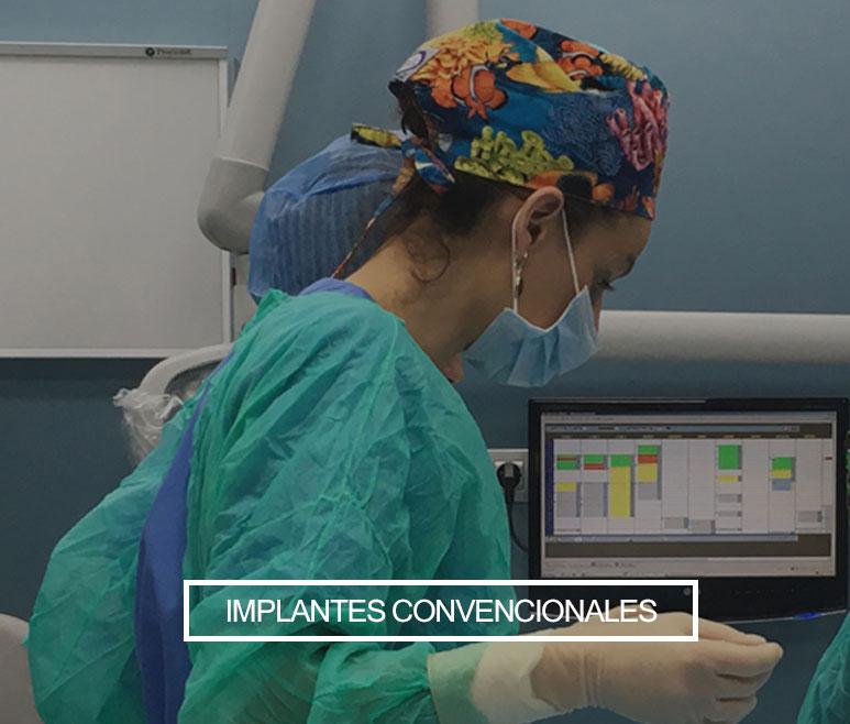 Implantes convencionales