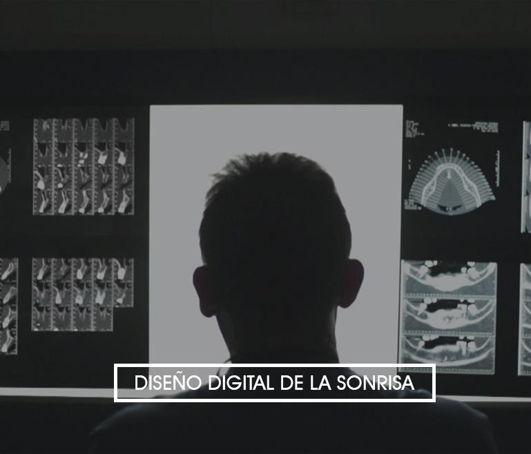 Diseño digital de la sonrisa