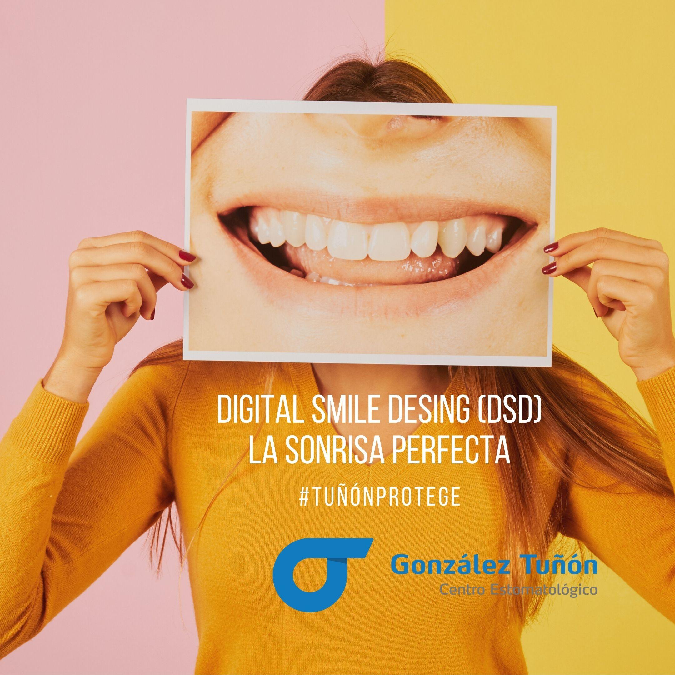 La sonrisa perfecta Digital Smile Desing DSD